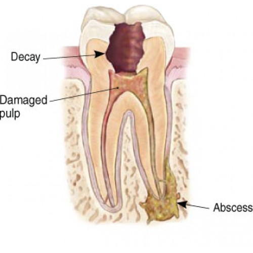 Root Canal (posterior tooth)-500x500