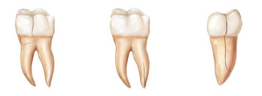 tooth-root-f